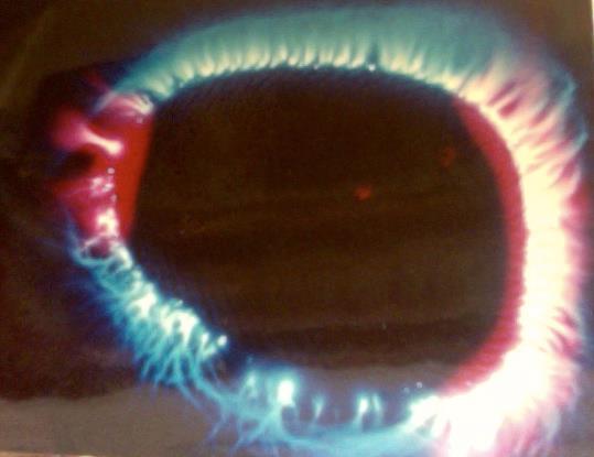 Foto Kirlian de un dedo indice teniendo energia muy baja